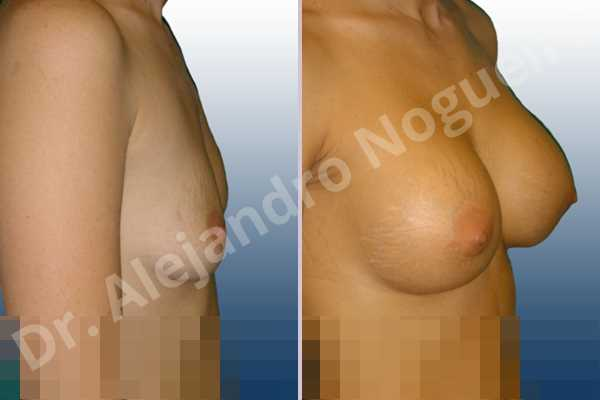 Asymmetric breasts,Empty breasts,Lateral breasts,Mildly saggy droopy breasts,Skinny breasts,Slightly saggy droopy breasts,Small breasts,Sunken chest,Too far apart wide cleavage breasts,Lower hemi periareolar incision,Round shape,Subfascial pocket plane - photo 4