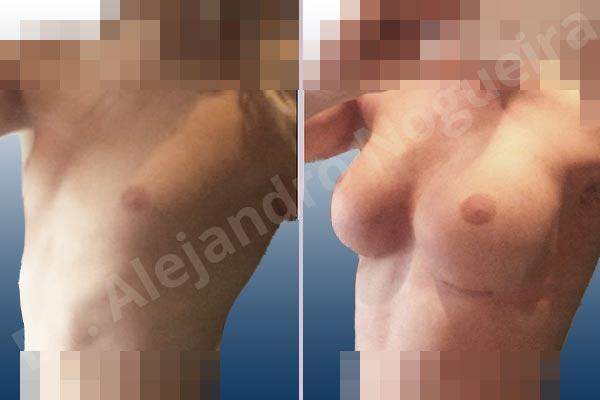 Before & After Case 4LR4EVLF