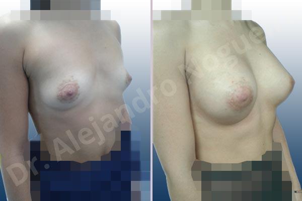 Before & After Case 4RJ4JL7P