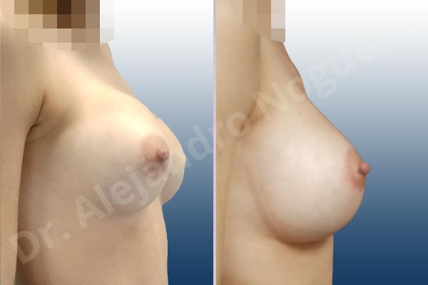Before & After Case 4UZF7W88