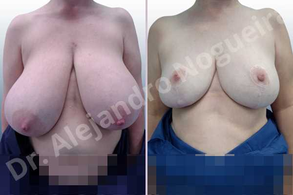 Asymmetric breasts,Breast tissue bottoming out,Extremely large breasts,Extremely saggy droopy breasts,Large areolas,Lateral breasts,Pendulous breasts,Pigeon chest,Wide breasts,Tuberous breasts,Anchor incision,Areola reduction,Double vertical pedicle - photo 1