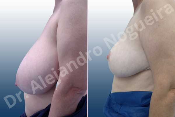Before & After Case 4VCDULV8