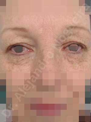 Baggy upper eyelids,Saggy upper eyelids,Upper eyelids ptosis,Upper eyelid fat bags resection,Upper eyelid skin and muscle resection