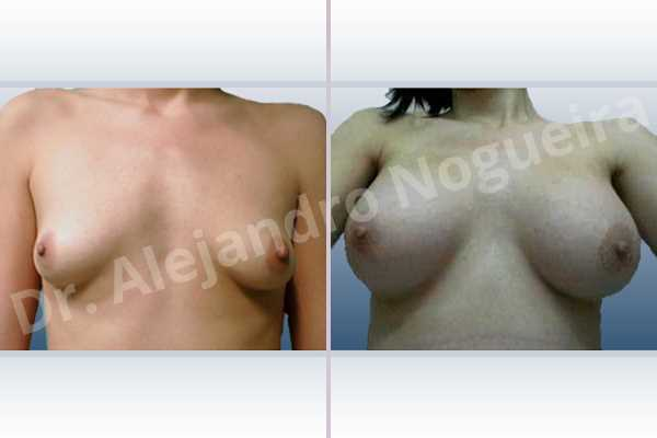 Lateral breasts,Narrow breasts,Skinny breasts,Small breasts,Sunken chest,Too far apart wide cleavage breasts,Tuberous breasts,Anatomical shape,Lower hemi periareolar incision,Subfascial pocket plane,Tuberous mammoplasty - photo 1
