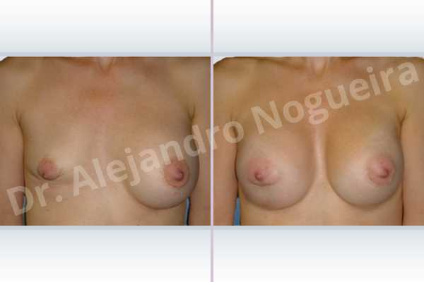 Before & After Case 4ZNVQUTR