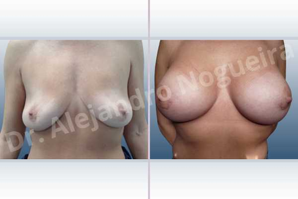 Asymmetric breasts,Cross eyed breasts,Empty breasts,Lateral breasts,Moderately saggy droopy breasts,Pendulous breasts,Pigeon chest,Skinny breasts,Small breasts,Too far apart wide cleavage breasts,Wide breasts,Anatomical shape,Extra large size,Lower hemi periareolar incision,Subfascial pocket plane - photo 1