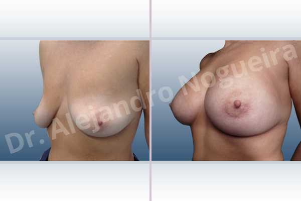 Asymmetric breasts,Cross eyed breasts,Empty breasts,Lateral breasts,Moderately saggy droopy breasts,Pendulous breasts,Pigeon chest,Skinny breasts,Small breasts,Too far apart wide cleavage breasts,Wide breasts,Anatomical shape,Extra large size,Lower hemi periareolar incision,Subfascial pocket plane - photo 3