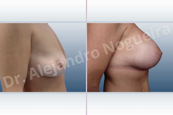 Asymmetric breasts,Cross eyed breasts,Empty breasts,Lateral breasts,Moderately saggy droopy breasts,Pendulous breasts,Pigeon chest,Skinny breasts,Small breasts,Too far apart wide cleavage breasts,Wide breasts,Anatomical shape,Extra large size,Lower hemi periareolar incision,Subfascial pocket plane - photo 4