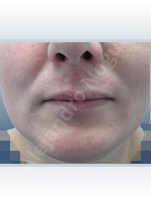 Small lips,Transgender lips,Lower lip autologous dermis collagen filler