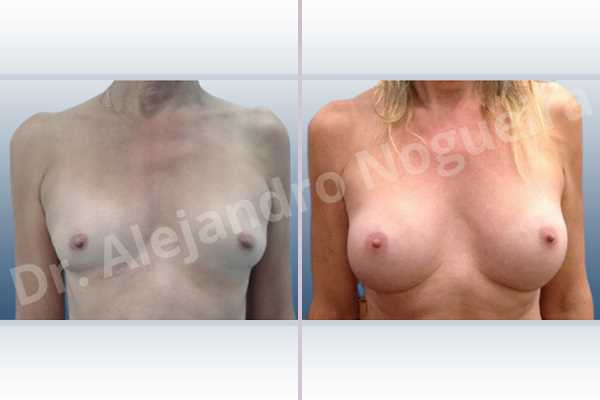 Asymmetric breasts,Cross eyed breasts,Empty breasts,Lateral breasts,Skinny breasts,Small breasts,Sunken chest,Too far apart wide cleavage breasts,Transgender breasts,Wide breasts,Anatomical shape,Inframammary incision,Subfascial pocket plane - photo 1