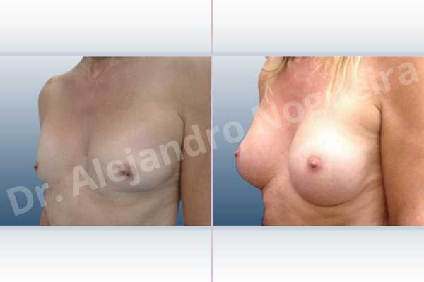 Asymmetric breasts,Cross eyed breasts,Empty breasts,Lateral breasts,Skinny breasts,Small breasts,Sunken chest,Too far apart wide cleavage breasts,Transgender breasts,Wide breasts,Anatomical shape,Inframammary incision,Subfascial pocket plane - photo 3