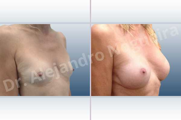 Asymmetric breasts,Cross eyed breasts,Empty breasts,Lateral breasts,Skinny breasts,Small breasts,Sunken chest,Too far apart wide cleavage breasts,Transgender breasts,Wide breasts,Anatomical shape,Inframammary incision,Subfascial pocket plane - photo 5