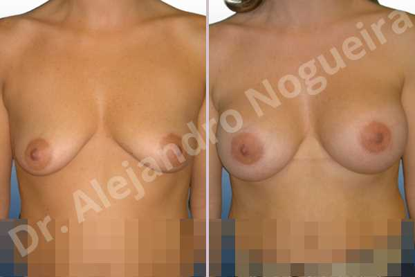 Empty breasts,Mildly saggy droopy breasts,Moderately saggy droopy breasts,Small breasts,Too far apart wide cleavage breasts,Tuberous breasts,Anatomical shape,Lower hemi periareolar incision,Subfascial pocket plane,Tuberous mammoplasty - photo 1