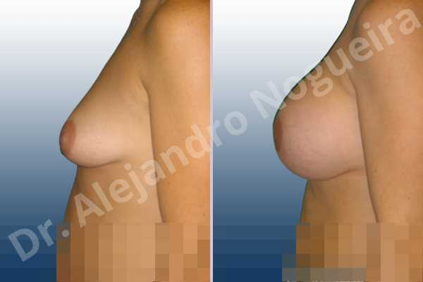 Before & After Case 6BHGHF34