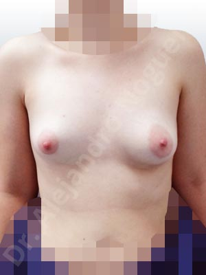 Asymmetric breasts,Cross eyed breasts,Empty breasts,Large areolas,Lateral breasts,Slightly saggy droopy breasts,Small breasts,Too far apart wide cleavage breasts,Tuberous breasts,Wide breasts,Anatomical shape,Lower hemi periareolar incision,Subfascial pocket plane,Tuberous mammoplasty