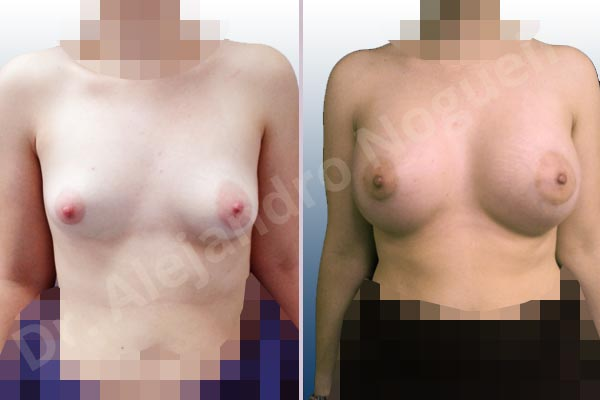Asymmetric breasts,Cross eyed breasts,Empty breasts,Large areolas,Lateral breasts,Slightly saggy droopy breasts,Small breasts,Too far apart wide cleavage breasts,Tuberous breasts,Wide breasts,Anatomical shape,Lower hemi periareolar incision,Subfascial pocket plane,Tuberous mammoplasty - photo 1