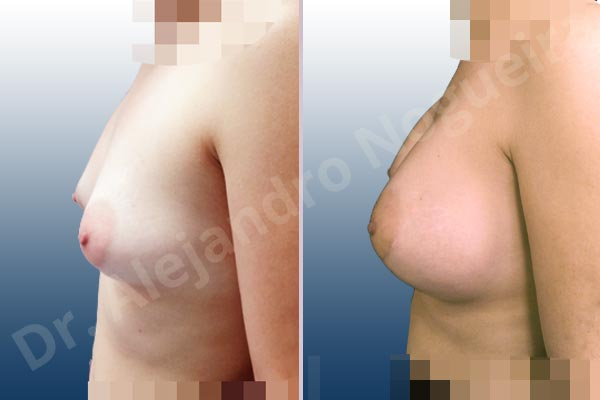 Asymmetric breasts,Cross eyed breasts,Empty breasts,Large areolas,Lateral breasts,Slightly saggy droopy breasts,Small breasts,Too far apart wide cleavage breasts,Tuberous breasts,Wide breasts,Anatomical shape,Lower hemi periareolar incision,Subfascial pocket plane,Tuberous mammoplasty - photo 2