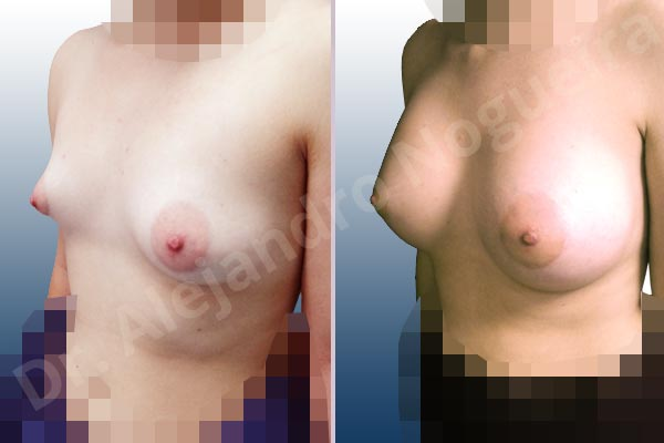 Asymmetric breasts,Cross eyed breasts,Empty breasts,Large areolas,Lateral breasts,Slightly saggy droopy breasts,Small breasts,Too far apart wide cleavage breasts,Tuberous breasts,Wide breasts,Anatomical shape,Lower hemi periareolar incision,Subfascial pocket plane,Tuberous mammoplasty - photo 3