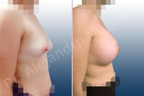 Asymmetric breasts,Cross eyed breasts,Empty breasts,Large areolas,Lateral breasts,Slightly saggy droopy breasts,Small breasts,Too far apart wide cleavage breasts,Tuberous breasts,Wide breasts,Anatomical shape,Lower hemi periareolar incision,Subfascial pocket plane,Tuberous mammoplasty - photo 4