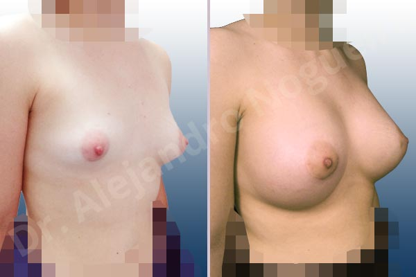 Asymmetric breasts,Cross eyed breasts,Empty breasts,Large areolas,Lateral breasts,Slightly saggy droopy breasts,Small breasts,Too far apart wide cleavage breasts,Tuberous breasts,Wide breasts,Anatomical shape,Lower hemi periareolar incision,Subfascial pocket plane,Tuberous mammoplasty - photo 5