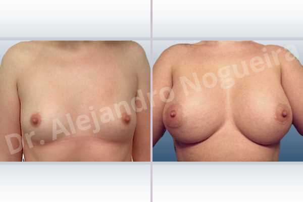 Asymmetric breasts,Lateral breasts,Small breasts,Too far apart wide cleavage breasts,Anatomical shape,Extra large size,Lower hemi periareolar incision,Subfascial pocket plane - photo 1