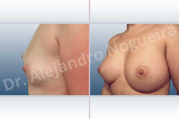 Asymmetric breasts,Lateral breasts,Small breasts,Too far apart wide cleavage breasts,Anatomical shape,Extra large size,Lower hemi periareolar incision,Subfascial pocket plane - photo 2