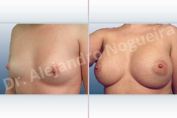 Asymmetric breasts,Lateral breasts,Small breasts,Too far apart wide cleavage breasts,Anatomical shape,Extra large size,Lower hemi periareolar incision,Subfascial pocket plane - photo 3