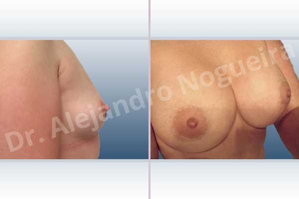 Asymmetric breasts,Lateral breasts,Small breasts,Too far apart wide cleavage breasts,Anatomical shape,Extra large size,Lower hemi periareolar incision,Subfascial pocket plane - photo 4