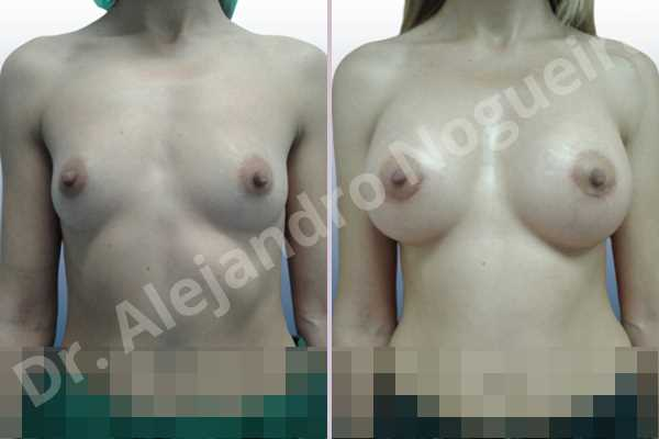 Before & After Case 6HJ3W8XA