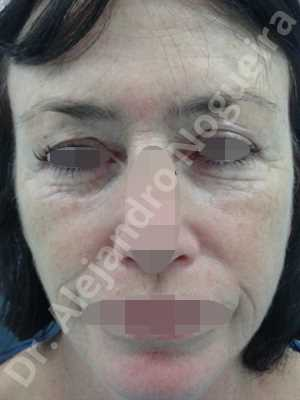 Baggy upper eyelids,Deep nasolabial folds,Droopy cheeks,Droopy eyebrows,Droopy face,Droopy forehead,Saggy upper eyelids,Short temporal incisions supraperiosteal extended lift of the upper two thirds of the face,Upper eyelid fat bags resection,Upper eyelid skin and muscle resection