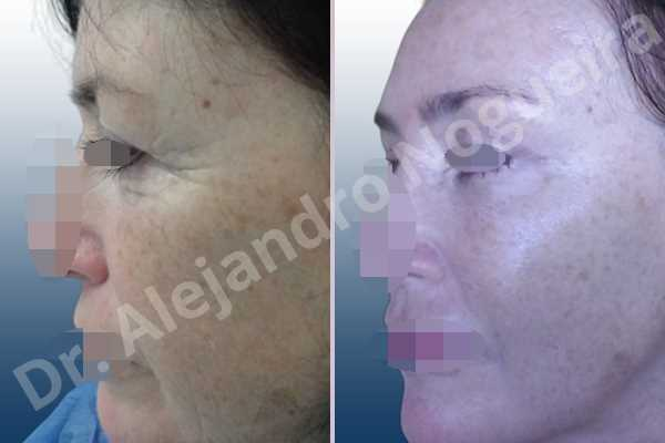 Baggy upper eyelids,Deep nasolabial folds,Droopy cheeks,Droopy eyebrows,Droopy face,Droopy forehead,Saggy upper eyelids,Short temporal incisions supraperiosteal extended lift of the upper two thirds of the face,Upper eyelid fat bags resection,Upper eyelid skin and muscle resection - photo 2