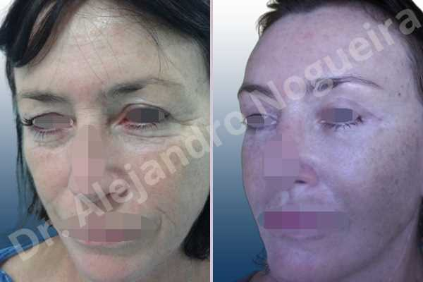 Baggy upper eyelids,Deep nasolabial folds,Droopy cheeks,Droopy eyebrows,Droopy face,Droopy forehead,Saggy upper eyelids,Short temporal incisions supraperiosteal extended lift of the upper two thirds of the face,Upper eyelid fat bags resection,Upper eyelid skin and muscle resection - photo 3