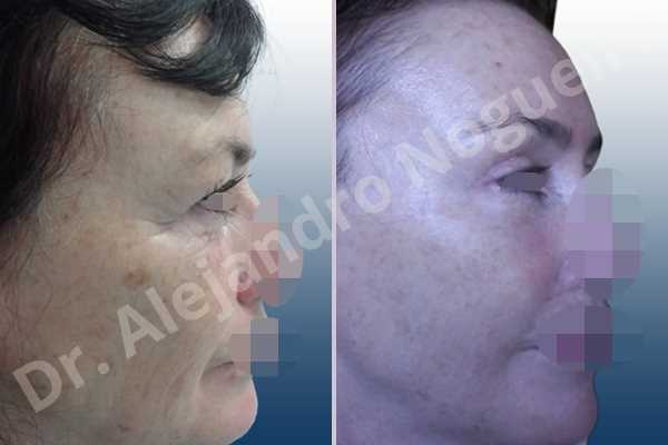 Baggy upper eyelids,Deep nasolabial folds,Droopy cheeks,Droopy eyebrows,Droopy face,Droopy forehead,Saggy upper eyelids,Short temporal incisions supraperiosteal extended lift of the upper two thirds of the face,Upper eyelid fat bags resection,Upper eyelid skin and muscle resection - photo 4