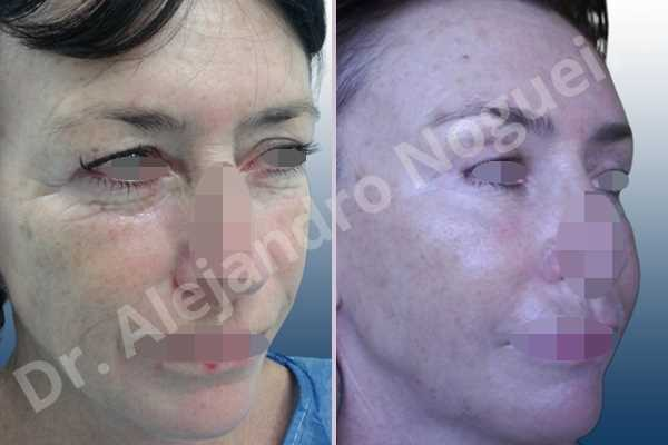 Baggy upper eyelids,Deep nasolabial folds,Droopy cheeks,Droopy eyebrows,Droopy face,Droopy forehead,Saggy upper eyelids,Short temporal incisions supraperiosteal extended lift of the upper two thirds of the face,Upper eyelid fat bags resection,Upper eyelid skin and muscle resection - photo 5
