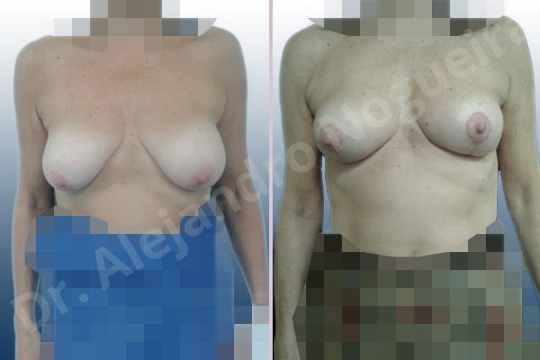 Before & After Case 6NZZ9X6N