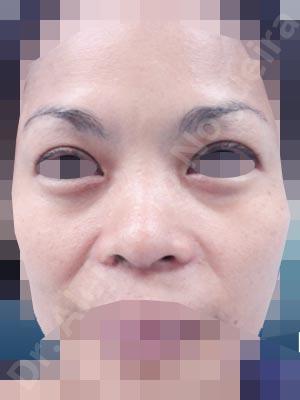 Asian nose,Broad dorsum,Bulbous tip,Flat dorsum,Low dorsum,Low radix,Overrotated tip,Poorly defined tip,Poorly supported tip,Rounded tip,Short nose,Short septum,Short upper lateral cartilages,Small alar cartilages,Small nose,Thick skin nose,Underprojected tip,Columella strut graft,Custom made tip graft,Dorsum replacement graft,Ear cartilage graft harvesting,Extended shield tip columella graft,Intercrural columella plasty sutures,Lateral cruras batten graft,Lateral cruras caudal extension graft,Lateral cruras replacement graft,Lateral cruras repositioning,Medial cruras replacement graft,Nasal bones osteotomies,Onlay columella graft,Onlay dorsum graft,Open approach incision,Rib cartilage graft harvesting,Septum caudal extension graft,Shield tip graft,Tip defatting,Tip replacement graft,Tongue in groove columella setback,Triangular cartilages caudal extension graft