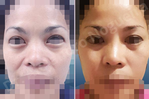 Before & After Case 6TMIDTMJ