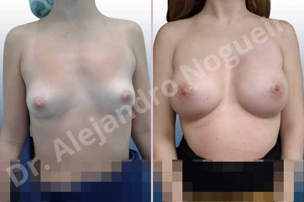 Before & After Case 6XQA74P9