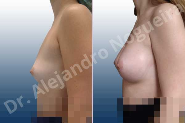 Asymmetric breasts,Empty breasts,Lateral breasts,Narrow breasts,Small breasts,Sunken chest,Too far apart wide cleavage breasts,Anatomical shape,Circumareolar incision,Subfascial pocket plane - photo 2