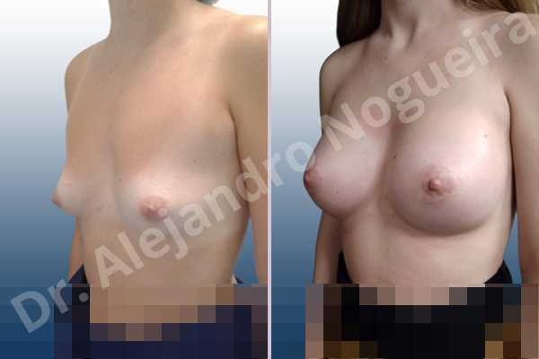 Asymmetric breasts,Empty breasts,Lateral breasts,Narrow breasts,Small breasts,Sunken chest,Too far apart wide cleavage breasts,Anatomical shape,Circumareolar incision,Subfascial pocket plane - photo 3