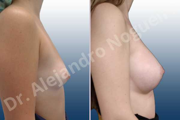 Asymmetric breasts,Empty breasts,Lateral breasts,Narrow breasts,Small breasts,Sunken chest,Too far apart wide cleavage breasts,Anatomical shape,Circumareolar incision,Subfascial pocket plane - photo 4
