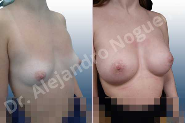 Asymmetric breasts,Empty breasts,Lateral breasts,Narrow breasts,Small breasts,Sunken chest,Too far apart wide cleavage breasts,Anatomical shape,Circumareolar incision,Subfascial pocket plane - photo 5