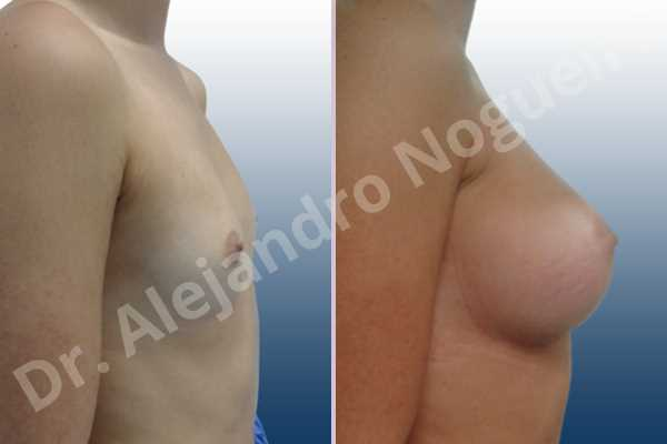Before & After Case 799ICFVJ
