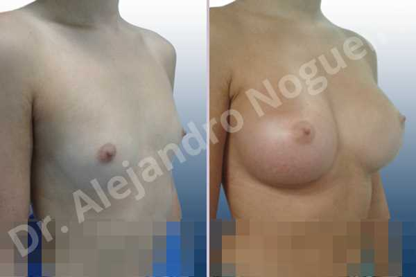 Cross eyed breasts,Empty breasts,Lateral breasts,Pigeon chest,Skinny breasts,Small breasts,Too far apart wide cleavage breasts,Wide breasts,Anatomical shape,Extra large size,Inframammary incision,Subfascial pocket plane - photo 5