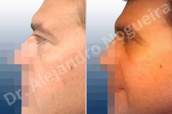 Before & After Case 7IPDLH49
