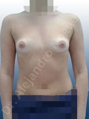 Asymmetric breasts,Empty breasts,Small breasts,Anatomical shape,Lower hemi periareolar incision,Subfascial pocket plane