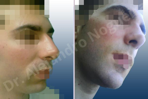Before & After Case 7VARTNCB