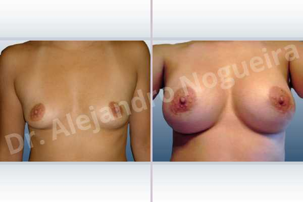 Asymmetric breasts,Cross eyed breasts,Empty breasts,Narrow breasts,Small breasts,Anatomical shape,Extra large size,Lower hemi periareolar incision,Subfascial pocket plane - photo 1