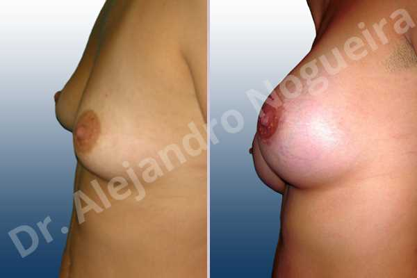 Asymmetric breasts,Cross eyed breasts,Empty breasts,Narrow breasts,Small breasts,Anatomical shape,Extra large size,Lower hemi periareolar incision,Subfascial pocket plane - photo 2