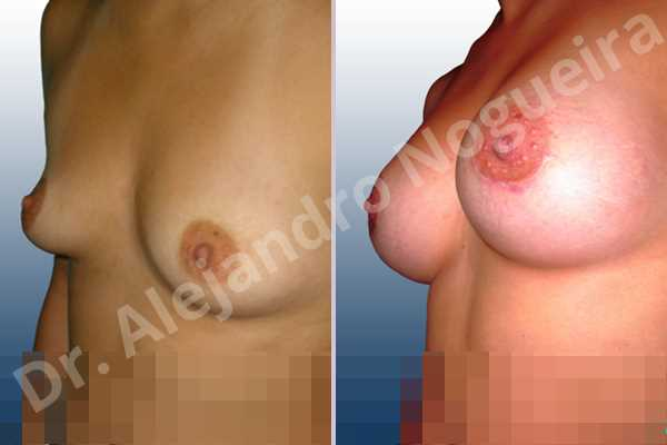 Asymmetric breasts,Cross eyed breasts,Empty breasts,Narrow breasts,Small breasts,Anatomical shape,Extra large size,Lower hemi periareolar incision,Subfascial pocket plane - photo 3